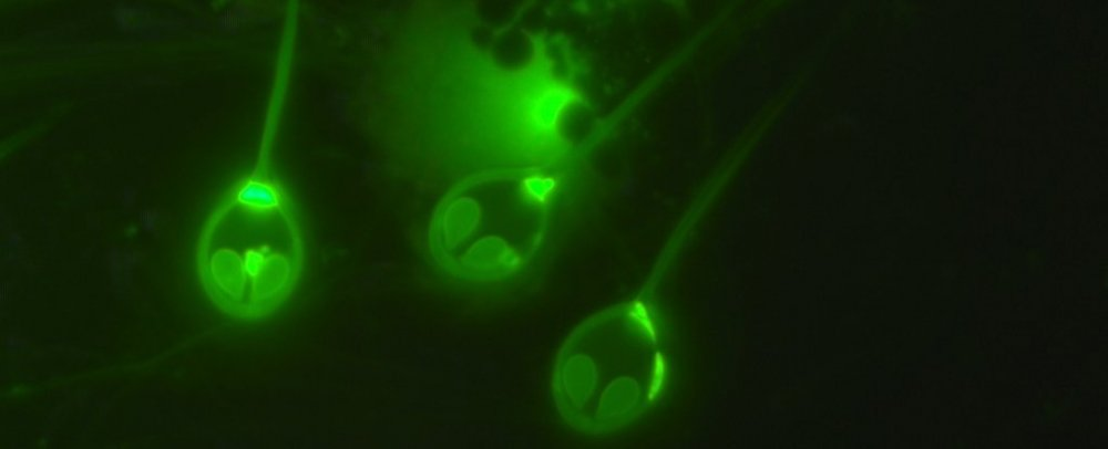 parasite-anaerobic_1024.jpg
